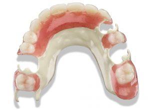 Partial denture - Solvay